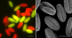 Left: Pollen grains with MAPK3/4 genotypes are illuminated using a fluorescent microscope. RIGHT: Normally developed pollen grains shown by an electronic microscope scan.